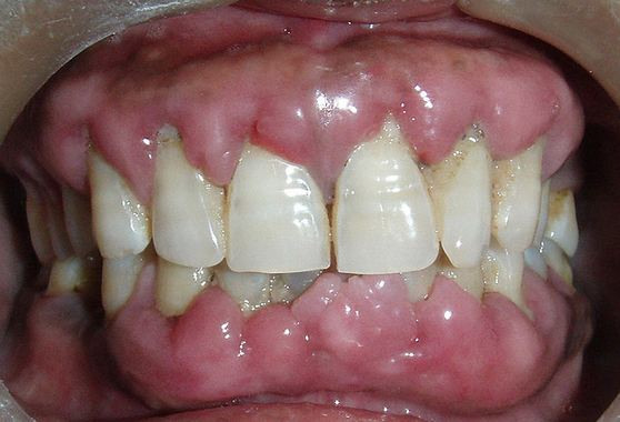 gingival-hyperplasia-pic