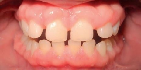 gingival hyperplasia picture