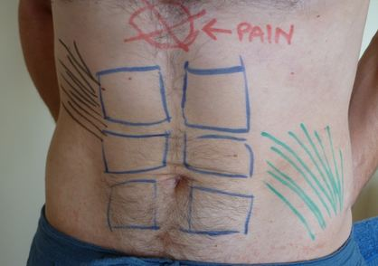 xiphoid process pain location