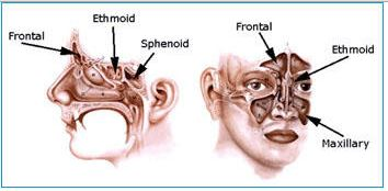 Anatomy of four sinuses - pansinusitis