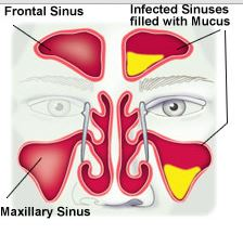 Mucous in sinus glands - pansinusitis