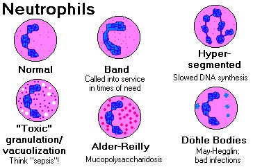 Normal and abnormal neutrophils