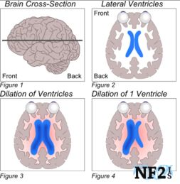 Overview of NF2