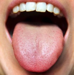 Image result for healthy tongue