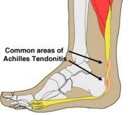 Affected area in achilles tendinitis