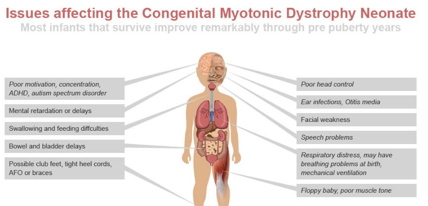 congenital-myotonic-muscular-dystrophy-symptoms-signs