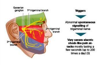 Development-and-symptoms-of-trigeminal-neuralgia