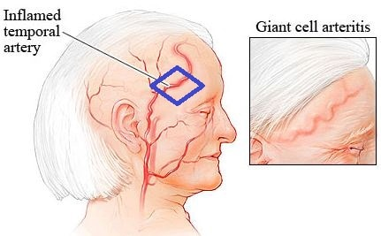 Giant-cell-Arteritis