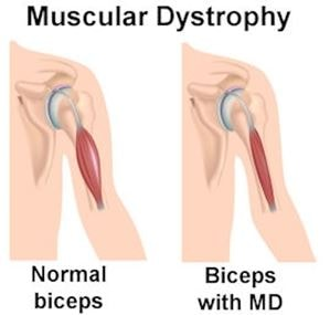 muscular-dystrophy-biceps