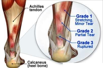Achilles Tendinitis - Treatment, Symptoms, Causes, Exercises