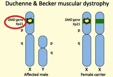 duchenne becker muscular dystophy image