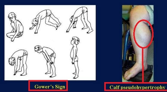 duchenne muscular dystrophy gowers sign calf pseudo hypertrophy