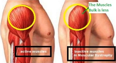 inactive muscles in myotonic muscular dystrophy