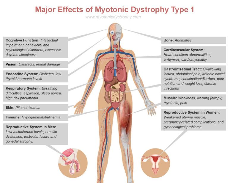 myotonic-dystrophy-type-1-major-effects-symptoms