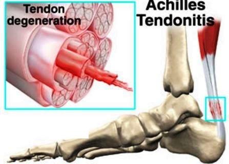 tendon degeneration