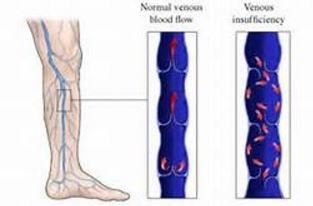 blood flow in venous insufficiency