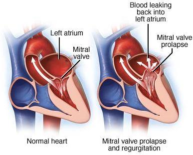mitral valve prolapse regurgitation