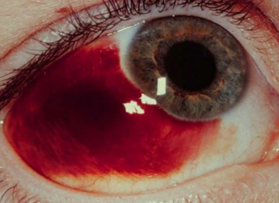 subconjunctival haemorrhage pictures
