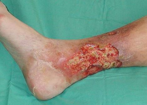 varicose ulcer picture