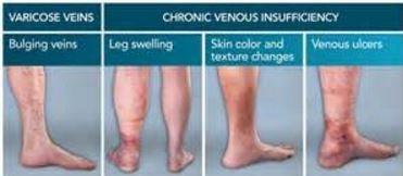 venous insufficiency picture