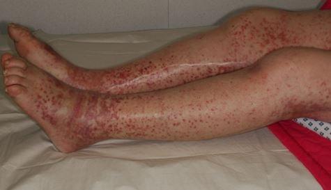 capillaritis image 3