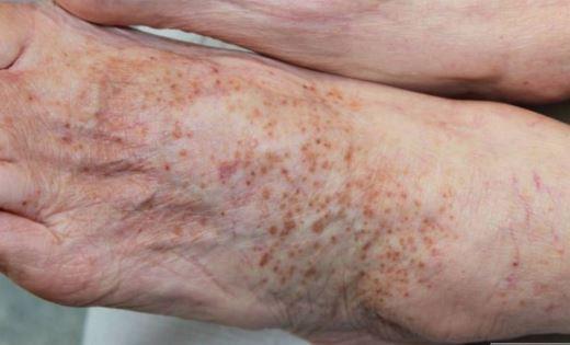 capillaritis photo