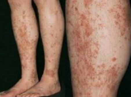 capillaritis pics