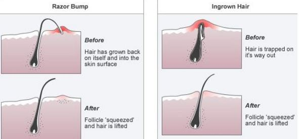 Ingrown hair Vs razor bump before and after treatment