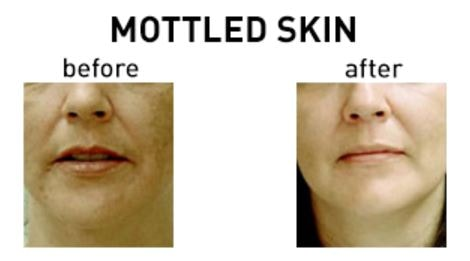 Mottled skin before after treatment
