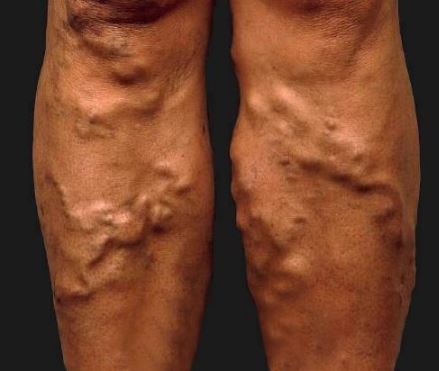blood clot in legs images