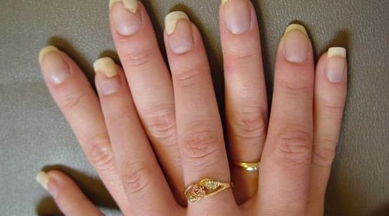 Excellent Nail Art Designs Youtube Tall How To Peel Off Nail Polish Solid Drinking Nail Polish Remover Nail Polish Halal Young Opal Nail Polish DarkAcrylic Nail Art Pictures Fingernail Fungus   Treatment, How To Get Rid, Pictures, Home Remedies