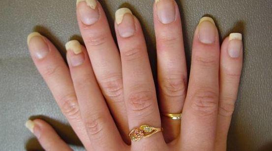 Fingernail Fungus pictures