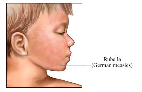 German measles pictures-
