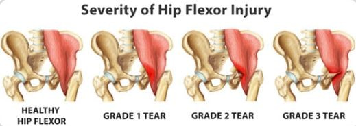 Hip Flexor pain causes strain