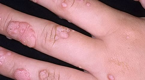 big warts on hand image