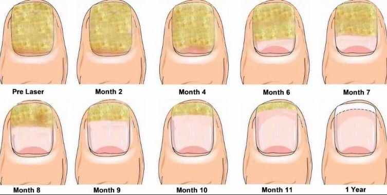 fingernail fungus image