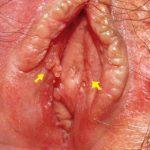 Vaginal Bumps
