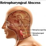 Retropharyngeal Abscess