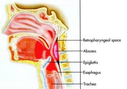 Retropharyngeal Abscess Lateral View