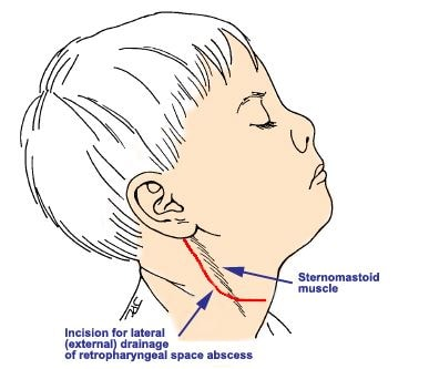 Retropharyngeal space Abscess drainage