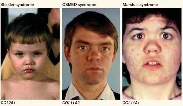 Stickler Syndrome types