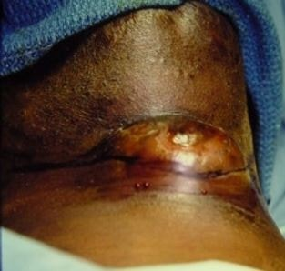Thyroglossal duct cyst image