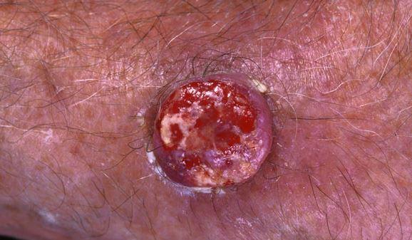 keratoacanthoma image 6