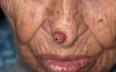 keratoacanthoma image 9