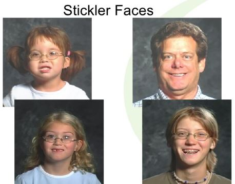 stickler syndrome picture