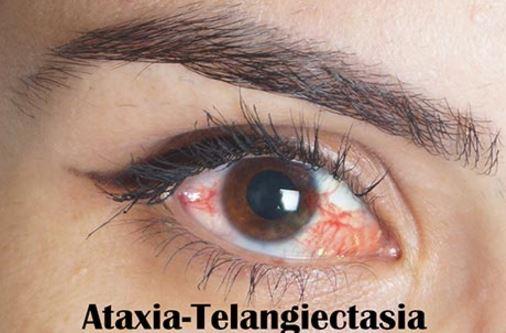 ataxia-telangectasia