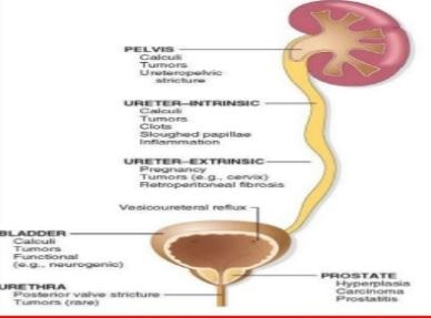 hydronephrosis-causes