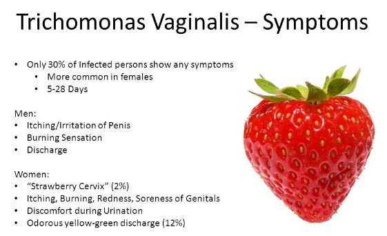 trichomonas vaginalis - pictures, what is?, treatment, symptoms, Cephalic Vein