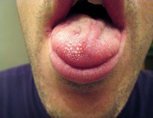 warts on tongue-symptoms