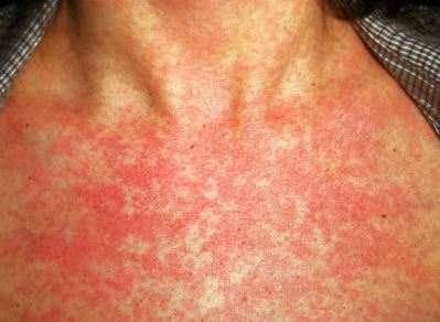rubella rash-photos-pics